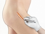 New Minimally Invasive Treatments for Hip Injuries