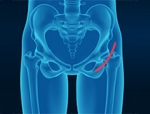 The Growing Trend of Direct Anterior Hip Replacement