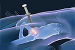 Benefits of Stem Cell Therapy for Hip Recovery