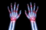Diagnosing Juvenile Arthritis
