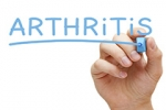 Treating Arthritis Without Surgery