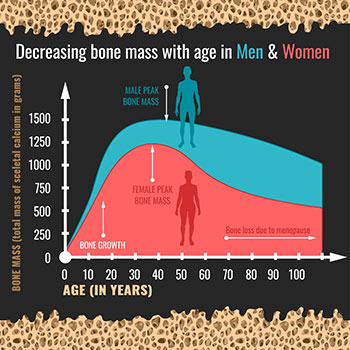 10 risk factors for osteoporosis