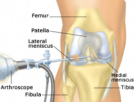 How is arthroscopic knee surgery performed?