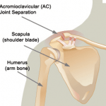 Acromioclavicular (AC) Joint Injuries