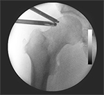 Largest-ever Hip Arthroscopy Study Data May Surprise // HSS Scores #1 for 6th Year in a Row // and More!